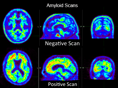Amyloid PET Scans